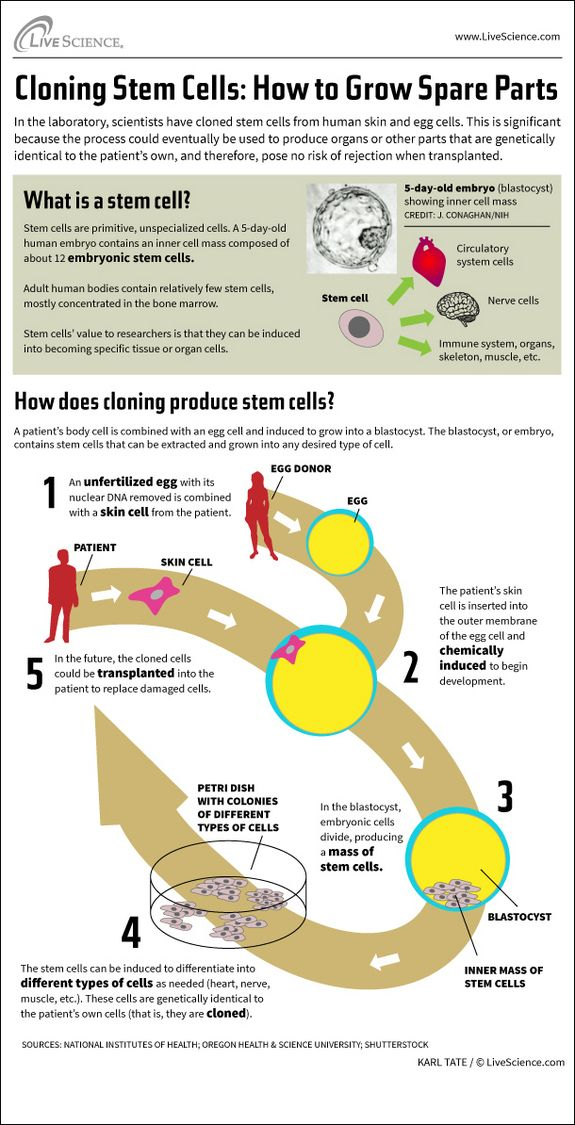 Infographic: How cloning produces stem cells that can be used to create organs or other body parts as needed.