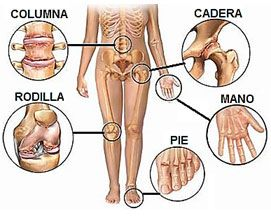Tengo FIBROMIALGIA y también tengo ARTROSIS, y PUEDO tener ARTRITIS... http://fibromialgiadolorinvisible.blogspot.com.ar/2014/10/tengo-fibromialgia-y-tambien-tengo.html
