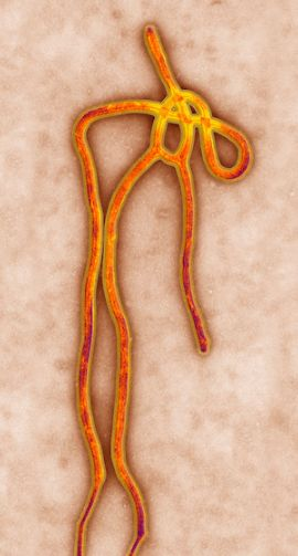 El virus del ébola visto en #microscopio TEM (Microscopio electrónico de transmisión) de 65.000 aumentos. Imagen de Science VU.