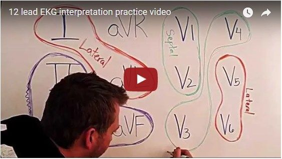 Best 12 Lead EKG Interpretation Cheat Sheet Video Ever Created.