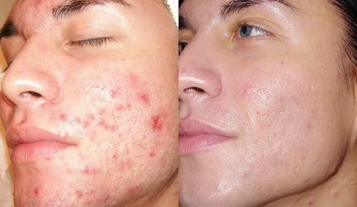 50 Home Remedies for Acne.Honey and cinnamon powder makes a wonderful combination in treating pimples. One of this treatments will work for you for sure, to get rid of that acne.