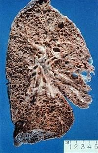 This is a lung with Pulmonary Fibrosis. It is turning to a stone like substance. This would likely (I'm guessing) explain why it becomes hard to bend over (it does't bend) and why one can't take a DEEP breath. It doesn't expand.