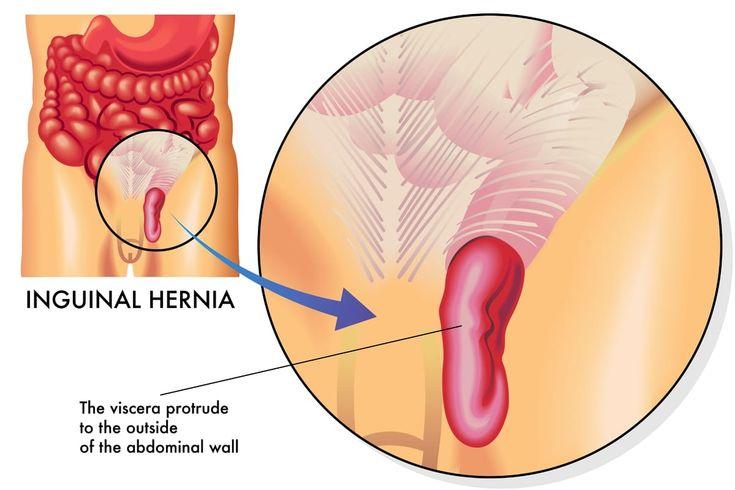 Hernia inguinal síntomas de una de las hernias más frecuentes #HerniaInguinal, #HerniaInguinalSíntomas, #Hernias #Salud