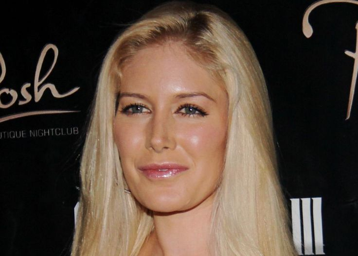 Heidi Montag Nose Job Plastic Surgery Before and After - http://celebie.com/heidi-montag-nose-job-plastic-surgery-before-and-after/