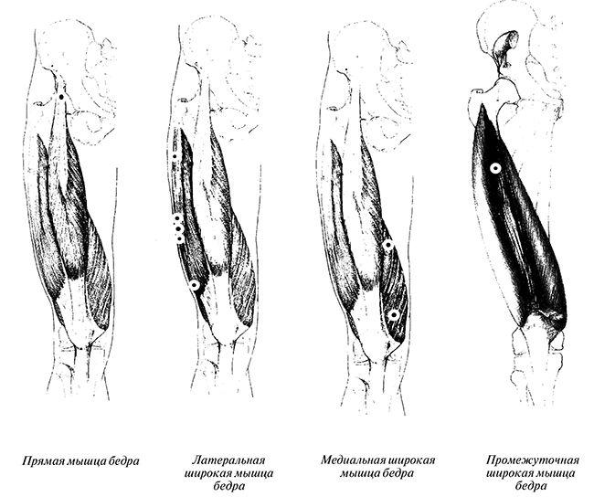 Четырехглавая мышца бедра и триггерные тонки