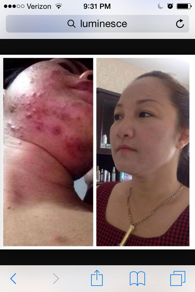 Discover Luminesce, The use of stem cell technology completely repairs all skin disorders. Stop throwing you money away and get the cellular serum now. www.dacusageless.jeunesseglobal.com