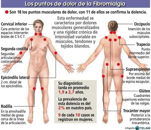 Puntos de Dolor Tacones. Vivir con Fibromialgia Sígueme: Facebook: Tacones Violetas - Vivir con Fibromialgia Twitter: @ Tacones Violetas fibromialgia , dolor , crónico , fibromyalgia , fm , fms , depresión , enfermedad autoinmune