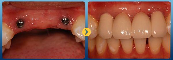 Thưa bác sỹ! Trồng răng implant giá bao nhiêu tiền? Tôi bị mất răng và có dự định trồng răng bằng implant vì đa số mọi người đều nói phương pháp này tốt nhất. Tuy nhiên tôi vẫn rất băn khoăn về chi phí trồng răng implant như thế nào thưa bác sĩ! (Nguyễn Thu Thảo – Hà Nội)