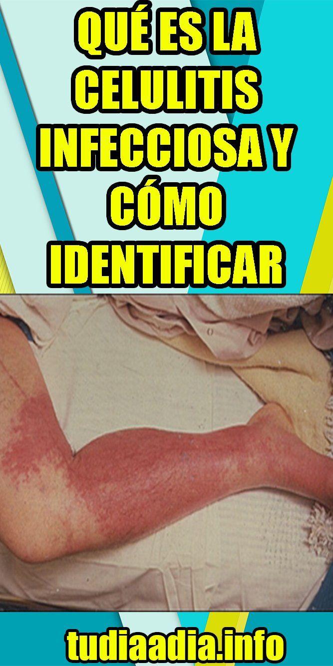 celulitis infecciosa en los pies