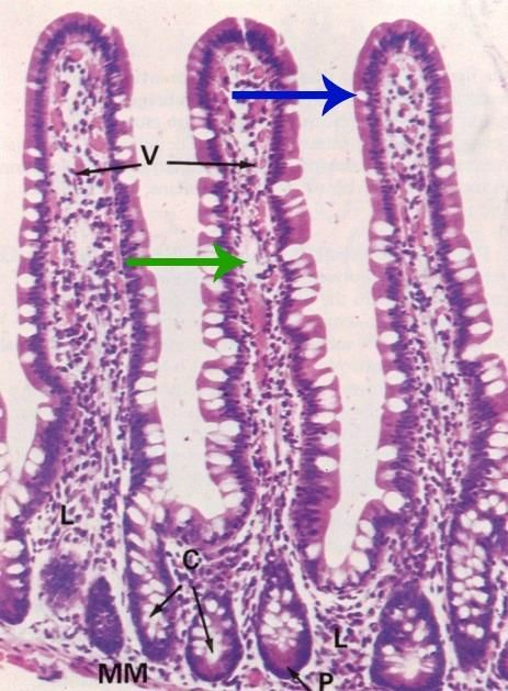 Loss Of Goblet Cells In The Small Intestines Of Mtgr1 Manual Guide