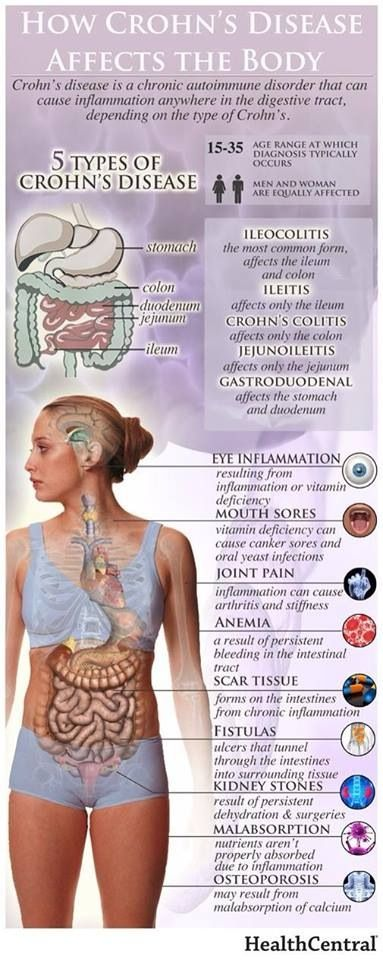 Crohn's disease - what you need to know about the impact of this chronic pain condition.