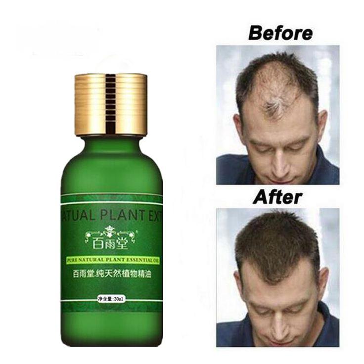 Soins Des cheveux La Croissance des Cheveux Huiles Essence D'origine Authentique 100% Perte De Cheveux Liquide Soins de Santé Beauté Dense Cheveux Croissance Sérum