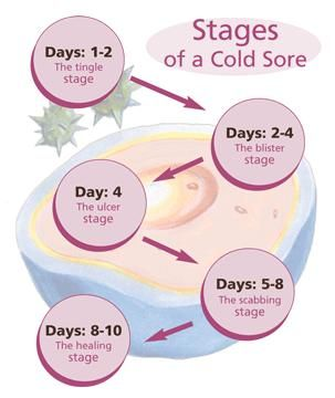 5 Stages of Cold Sore - what are the stages of a cold sore and remedies to prevent cold sores and fever blisters.
