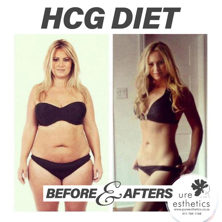 Want to lose weight? Contact Us for more information or to book your appointment! T: 011 784 1168 E: info@pureesthetics.co.za 117 Virginia Avenue, Parkmore, Sandton #HCGDiet #PureEsthetics