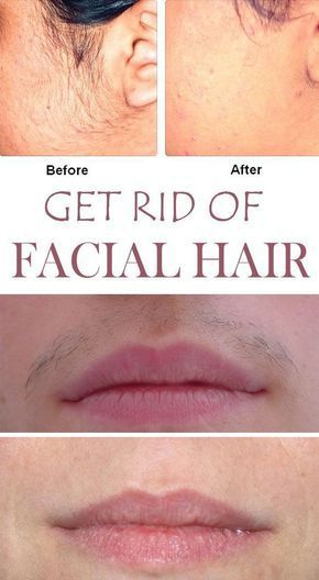 Say Goodbye to Facial Hair for Good With THESE Simple Homemade Recipes. #NaturalBeauty #hair #skincare #diytips #Bodycare #Beautytips #Beautysecrets #Homeremedies #remedy
