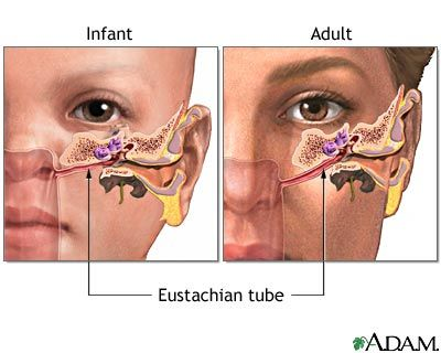 A child's eustachian tube is straighter and smaller than an adults, plus they have less sinuses and smaller sinuses, so they tend to get more ear infections