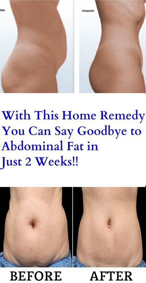 With This Home Remedy You Can Say Goodbye To Abdominal Fat