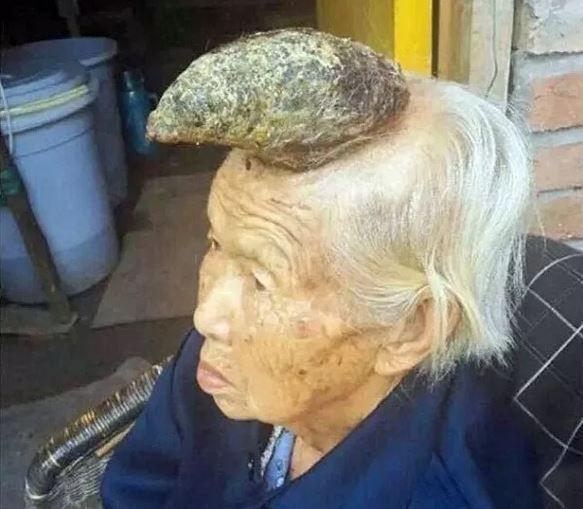 Une chinoise a une vraie corne sur la tête - http://www.2tout2rien.fr/une-chinoise-a-une-vraie-corne-sur-la-tete/