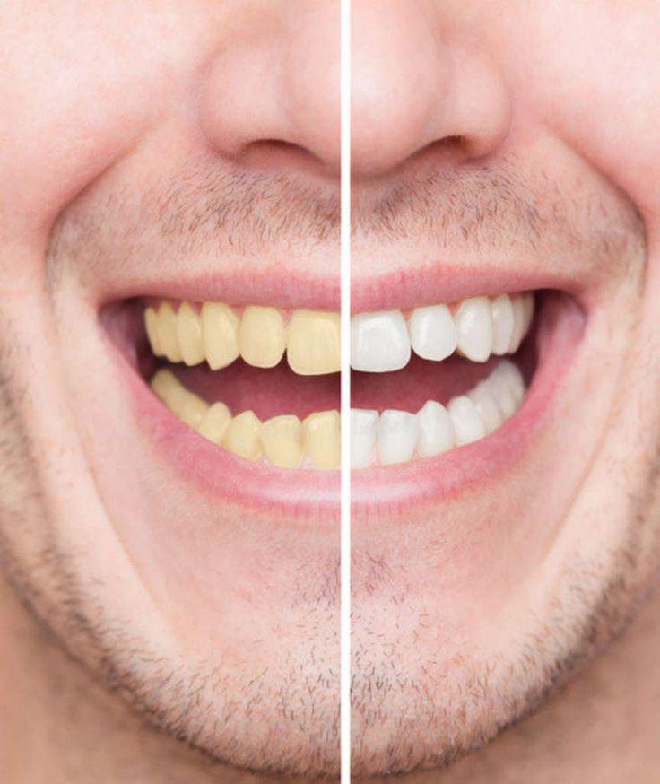 SIEBEN TIPPS VOM EXPERTEN Hilfe, was hilft gegen meine gelben Zähne?