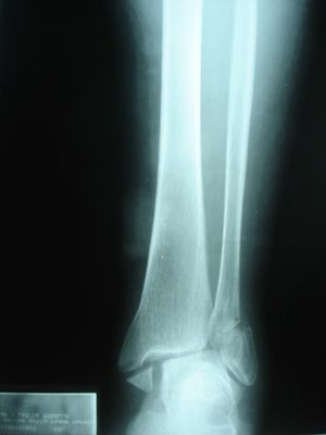 Exercises for fractured ankle recovery
