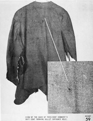 This image provided by the Warren Commission shows the bullet entrance hole on the back of Kennedy's suit coat.