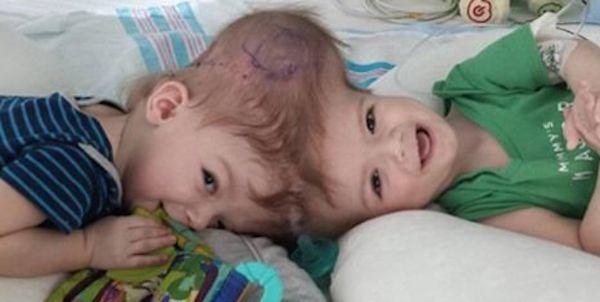Si guardano per la prima volta negli occhi dopo l'operazione: l'immagine è merevigliosa – FOTO e VIDEO - http://www.sostenitori.info/si-guardano-la-volta-negli-occhi-loperazione-limmagine-merevigliosa-foto-video/267205