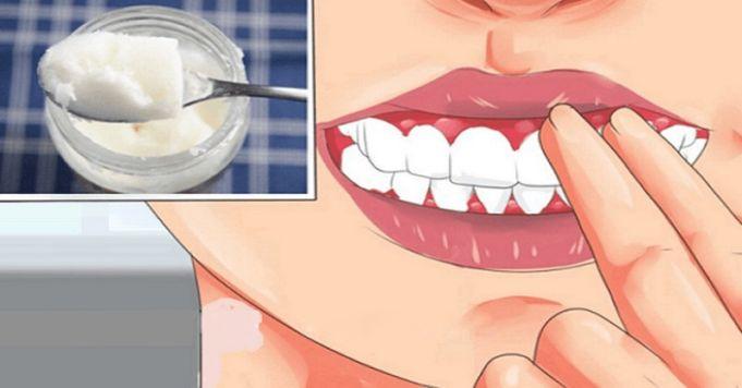 Jak vyléčit zánět dásní bez léků či zubaře