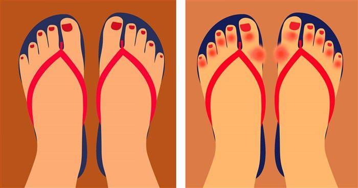 6 λόγοι που οι γιατροί μας προειδοποιούν να μην φοράμε σαγιονάρες  #Υγεία