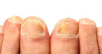 How to Effectively Treat Toenail and Fingernail Fungus!
