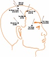 Acupuncture for Major Depression Disorders