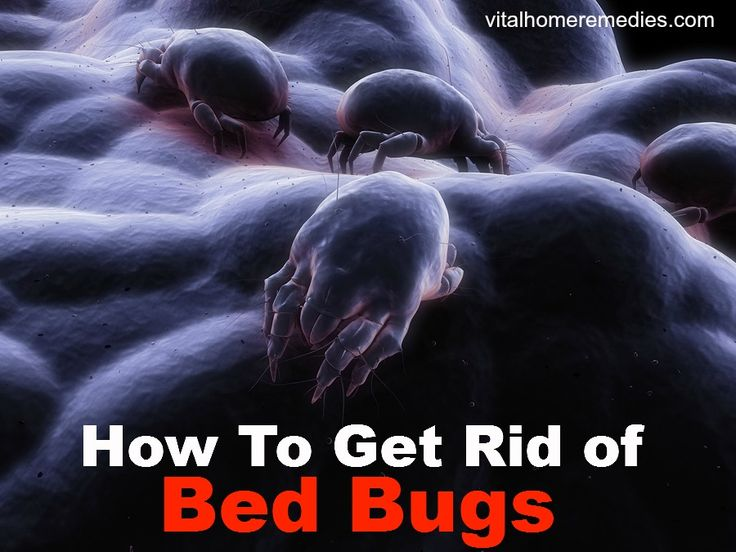 How To Get Rid Of Bed Bugs Home Remedies Pinterest