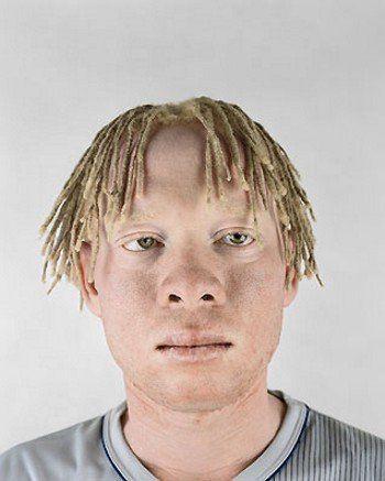 8 - Albino africans