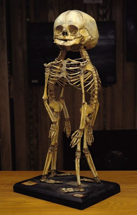Skeleton of cephalothoracopagus monosymmetros twins, twins fused at the head and thorax, at the Mutter Museum in Philadelphia.