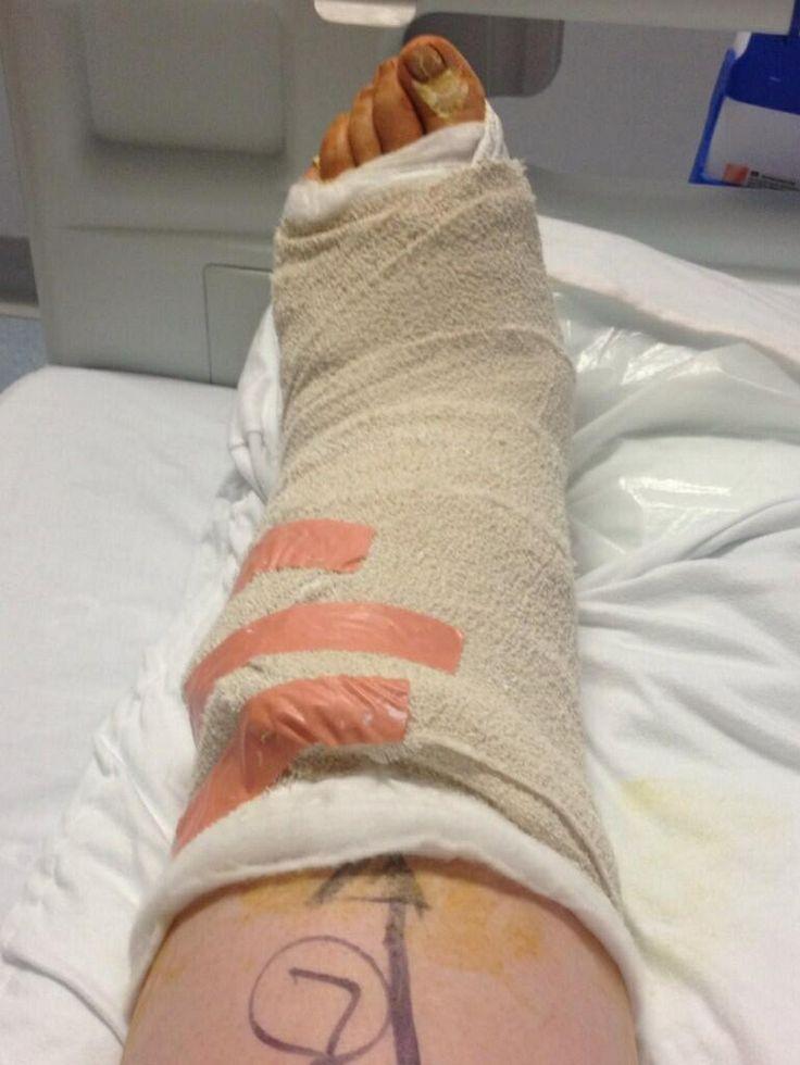 109 best images about sprain broken ankle broken foot