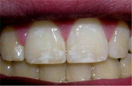Biology of Dental Fluorosis