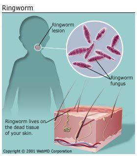 ~ Ringworm ~ Worms don't cause ringworm. Rather, this superficial skin infection, also known as tinea, is caused by fungi called dermatophytes. Fungi are microscopic organisms that can live off the dead tissues of your skin, hair, and nails, much like a mushroom can grow on the bark of a tree. Ringworm is characterised by a red ring of small blisters or a red ring of scaly skin that grows outward as the infection spreads. Children are especially susceptible to catching it.