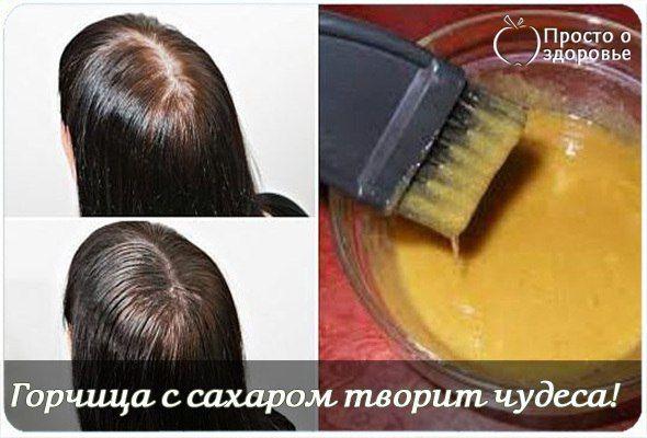 Горчица с сахаром творит чудеса! Густые волосы всего за месяц и очень быстрый рост.Горчичный порошок давно известен как отличный стимулятор роста волос. Кроме того, он поглощает лишний жир, улучшает кровоснабжение кожи, регулирует работу сальных желез.Однако такой непростой ингредиент необходимо грамотно использовать, чтобы не пересушить кожу головы, не вызвать появление перхоти и ломкость волос. Если у тебя есть склонность к аллергии или чувствительная кожа, то применять горчицу нужно с…