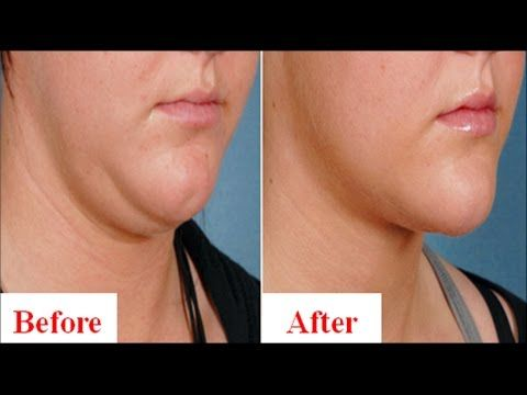 how to get rid of double chin and chubby cheeks