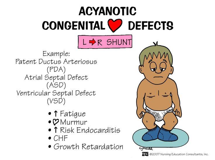 Acyanotic Congenital Heart Defects