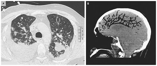 Air embolism in the brain  a 42-year-old man with leukemia and fungal pneumonia (panel A) with was in a respirator after acute respiratory failure. Suddenly he coughed up blood and went into cardiac arrest. He was resuscitated, but CT-scan (panel B) showed a large amount of air in the blood vessels of the brain (air embolism).  Cardiac resuscitation and mechanical ventilation (perhaps combined with the lung infection) were the likely cause of the air embolism in this patient.
