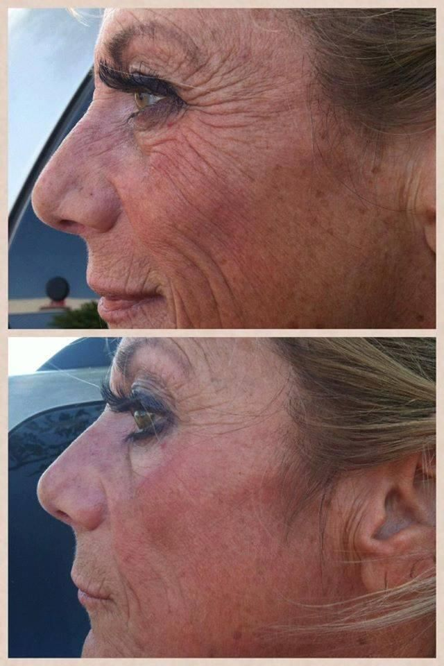 Real people/real results!  What can Nerium AD do for you in 6 months?  Contact me for details.  http://www.nerium.com/sheilaburns/
