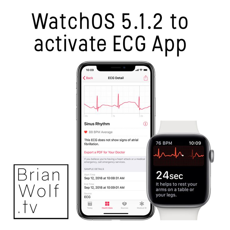 WatchOS 5.1.2 to Activate ECG App . For more tap the link