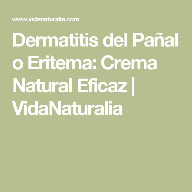 Dermatitis del Pañal o Eritema: Crema Natural Eficaz | VidaNaturalia