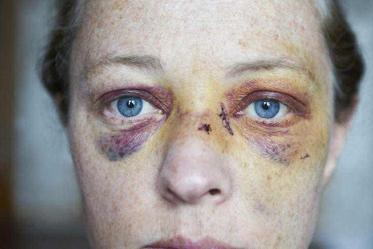 3 Steps to Treat a Black Eye