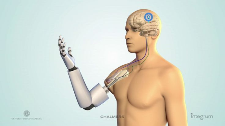 Nerve impulses from the brain control the Chalmers University prosthesis
