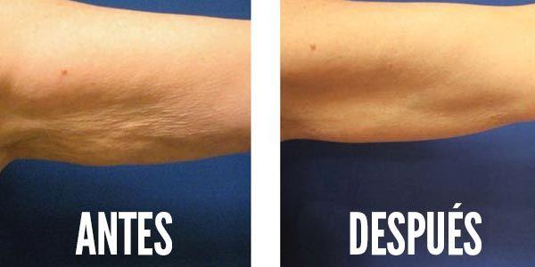 ejercicios para la celulitis de los brazos