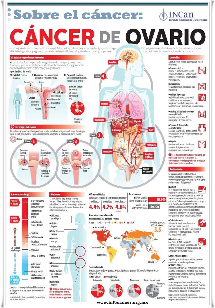 Infocáncer. Infografía Cáncer de Ovario