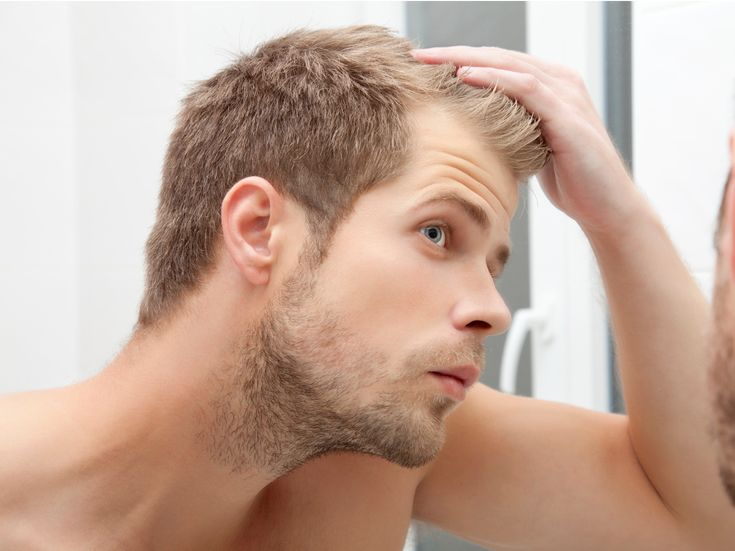 Is #Hair_Transplant Possible in your 20s? Find the answer in this article. Written by #mcanhealth Health