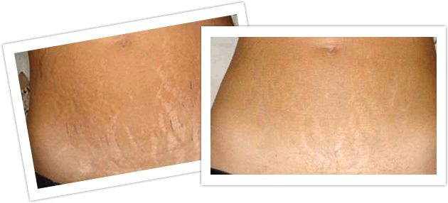Stretch marks usually appear red in color initially and then over time can change to dark red, sliver or even white at times. So, red stretch marks are nothing but the first development of stretch marks on the body.