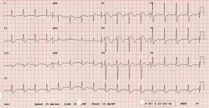 Review of the ECG features of right bundle branch block.